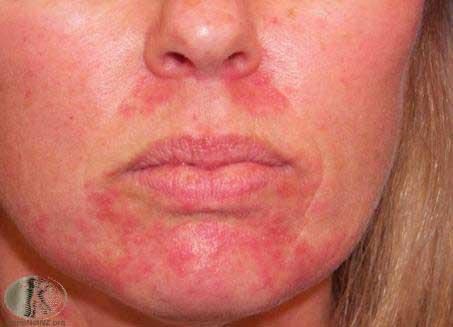 Skincare-steriod-rash